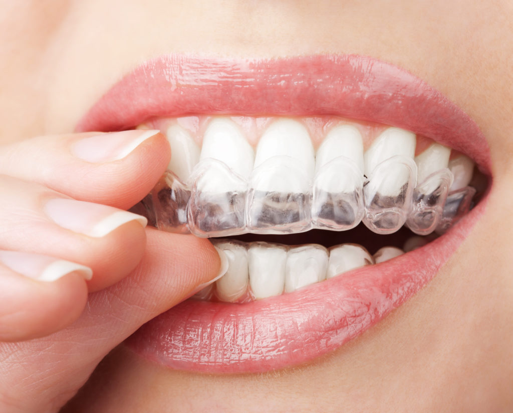 Gingivitis Symptoms Treatment and Prevention