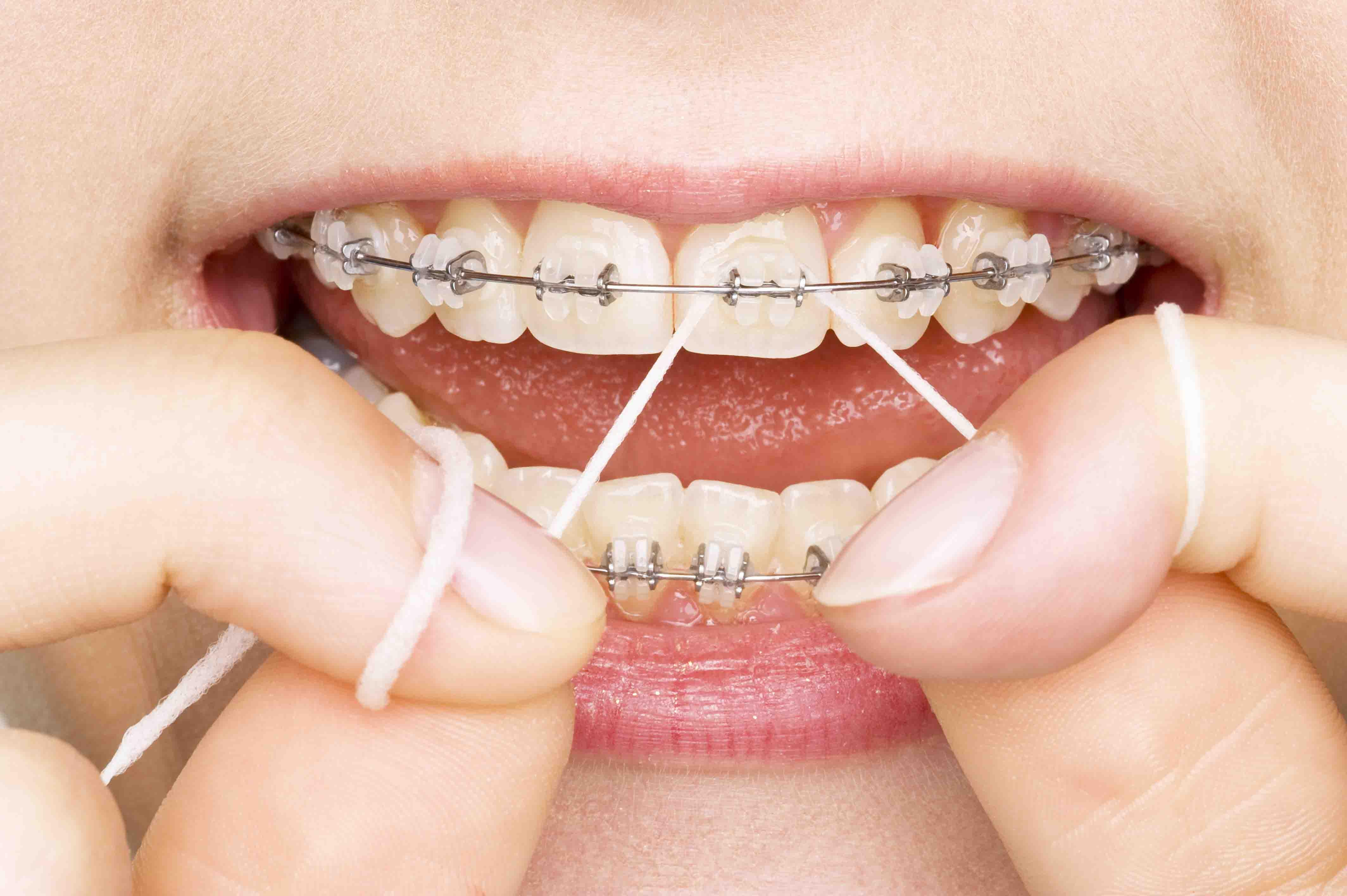 Reasons to Choose Dental Savings Plans