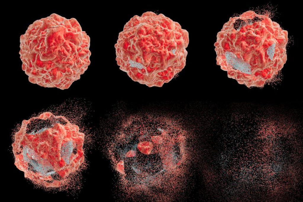 Why Prostate Cancer Treatment Shouldn't Be One-size-fits-all